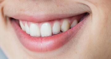 Dental Encyclopedia